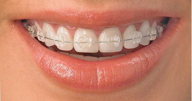 radiance_clear_braces_leeds_orthodontists_clarendon_dental_spa.png